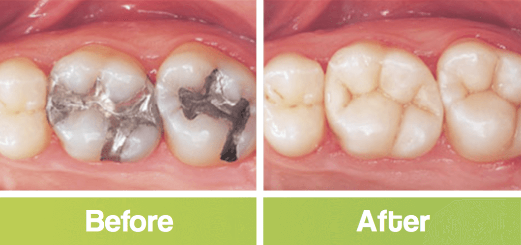 Image of before and after replacement of silver fillings.