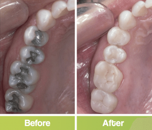 before and after fillings