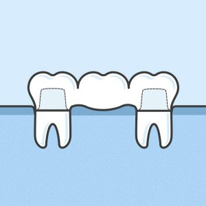 Image of a dental bridge.