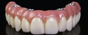 Hybrid prosthesis model three