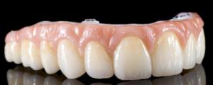 Hybrid prosthesis model two