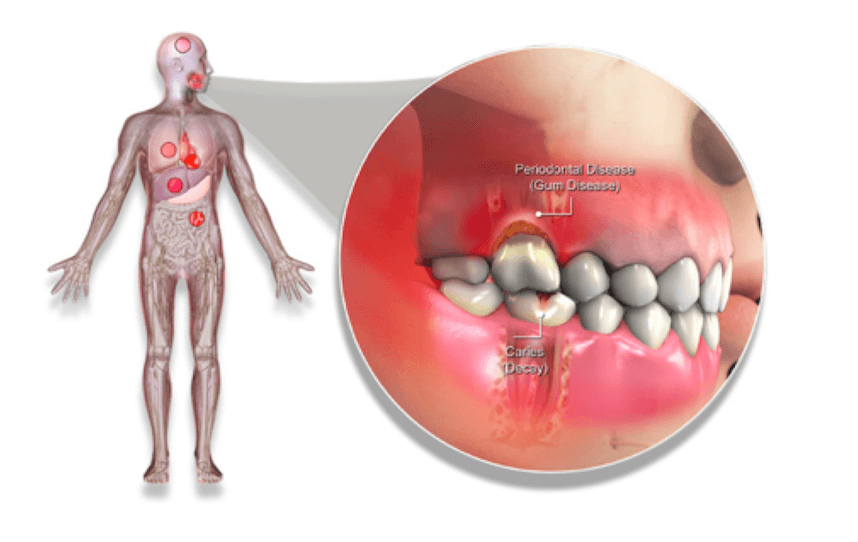 periodontal treatment diagram