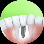 dental implant for Family Dentistry