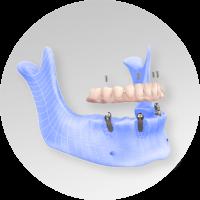 hybrid prosthesis