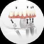 implant dentistry hybrid prosthesis lincoln ne circle