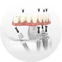 implant dentistry hybrid prosthesis lincoln ne circle